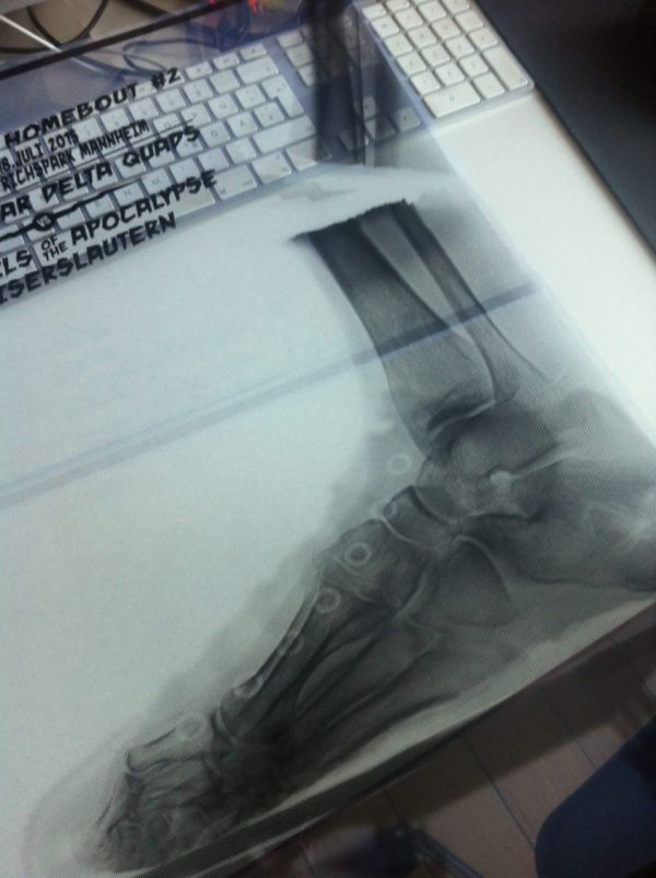 Work in Progress: Derby X-Ray